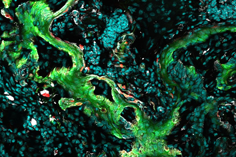 A mechanism shared by healing wounds and growing tumors